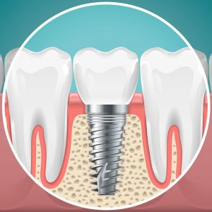 implant dentist Sterling Heights